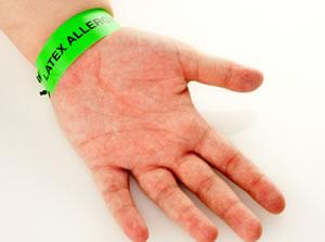 Alergia ao latex - Síndrome látex-fruta
