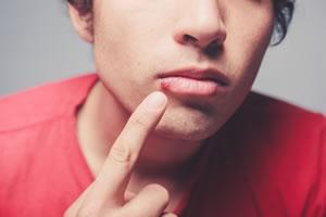 Herpes e a Alimentação